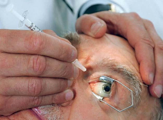 száraz macula degeneráció kezelése
